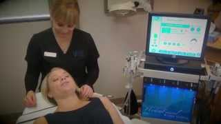 San Diego HydraFacial MD Demonstration Thumbnail