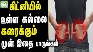 kidney Stones Natural Treatment - Tamil Health Tips