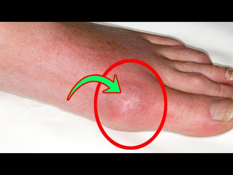 THIS REMEDY WILL REMOVE THE URIC ACID FROM YOUR JOINTS AND DEFEAT GOUT