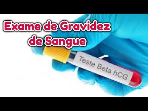 Видео Exame gravidez