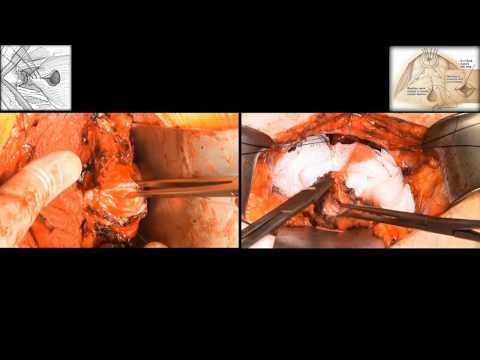 Radical retropubic prostatectomy / Радикальная позадилонная простатэктомия
