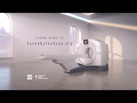 Saved By The Scan :15 Matches PSA | American Lung Association