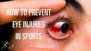 Prevent eye injuries in sports and exercise