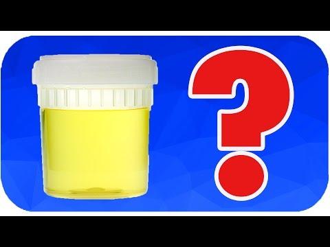 Çişinizin Rengi Ne Anlama Geliyor?