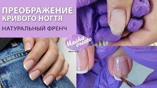 Перетворення деформованого нігтя. Натуральний френч на нігтях. Ремонт нігтів.