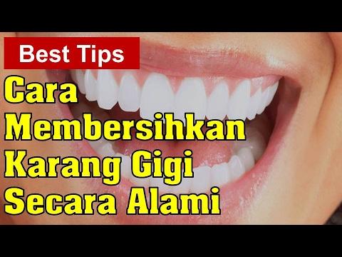 Cara Membersihkan Karang Gigi Secara Alami Youtube