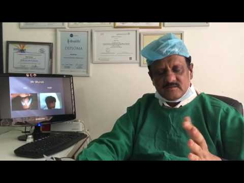 long hair transplant in Bangalore, long hair transplant clinic in bangalore