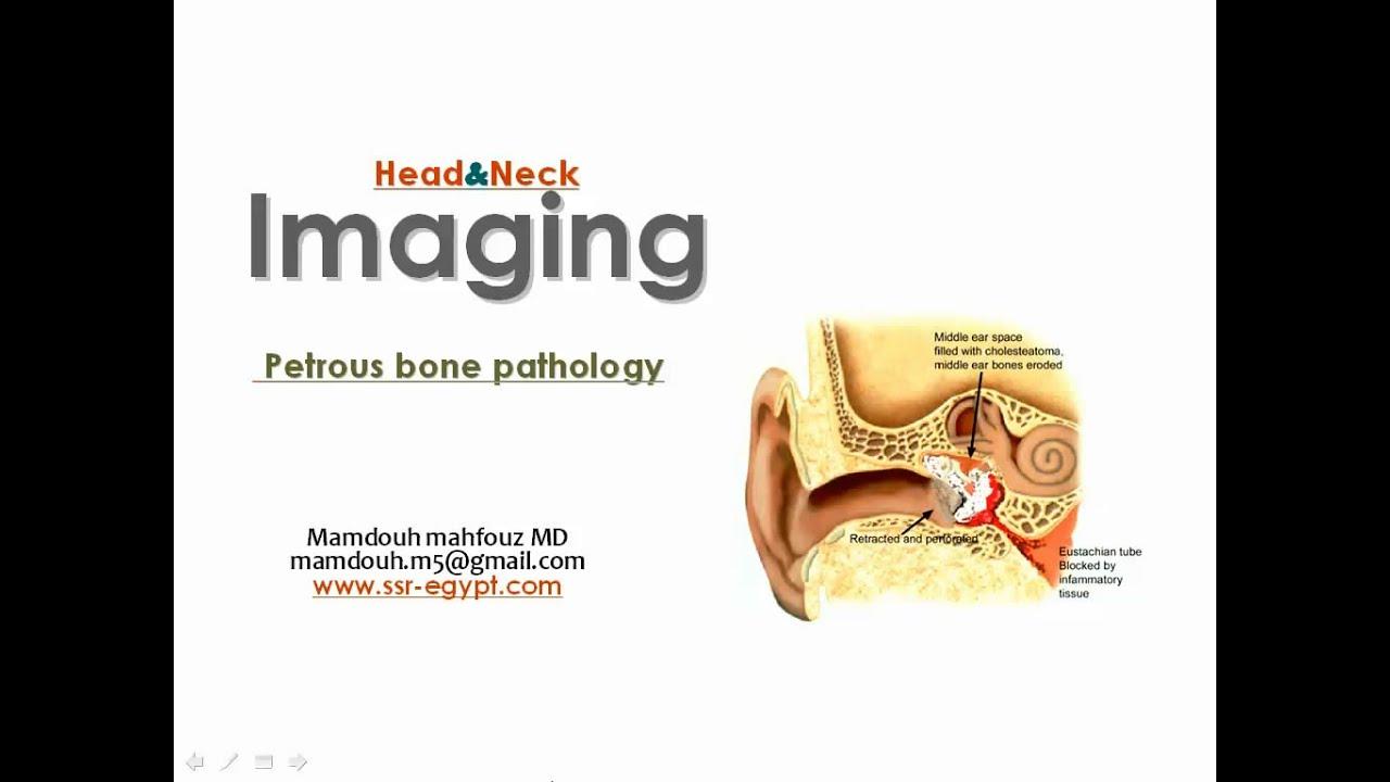 Imaging Of Petrous Bones I Dre 1 Dr Mamdouh Mahfouz Youtube