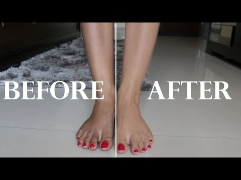 How to Remove Sun Tan From Your Body Quickly | Immediate Results