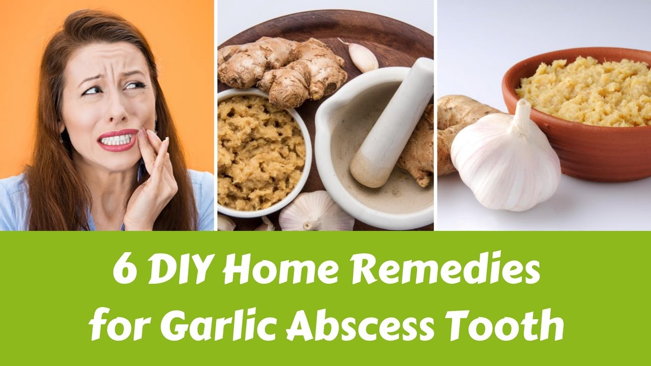 Tooth abscess home remedies