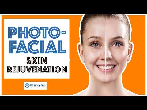 PhotoFacial Treatment In Delhi (Skin Rejuvenation, Pigmentation, Age Spots) | Desmoderm