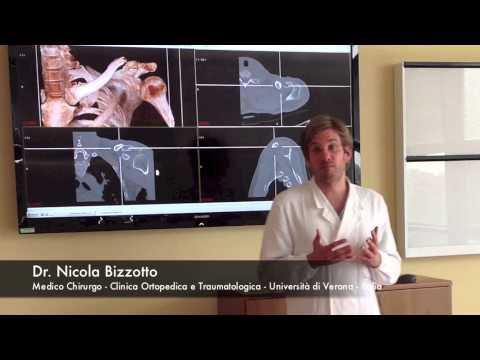 3D Printing Fractures: Stampa 3D delle Fratture dei Pazienti Ortopedia Università di Verona