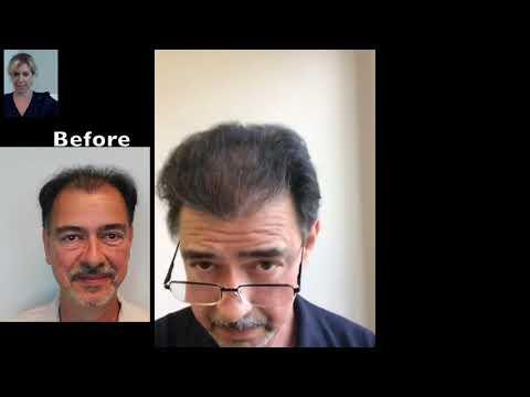 great-natural-hair-transplants-boca-raton- -natural-transplants,-hair-restoration-clinic-in-boca