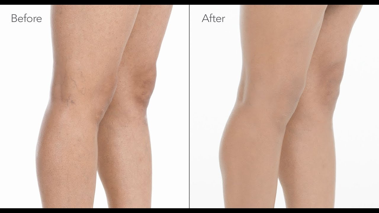 How to Cover Spider Veins on Legs with Makeup | jane iredale
