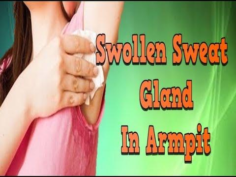 Swollen Sweat Gland In Armpit, Hidradenitis Suppurativa Mild, Acne Inversa Home Remedies