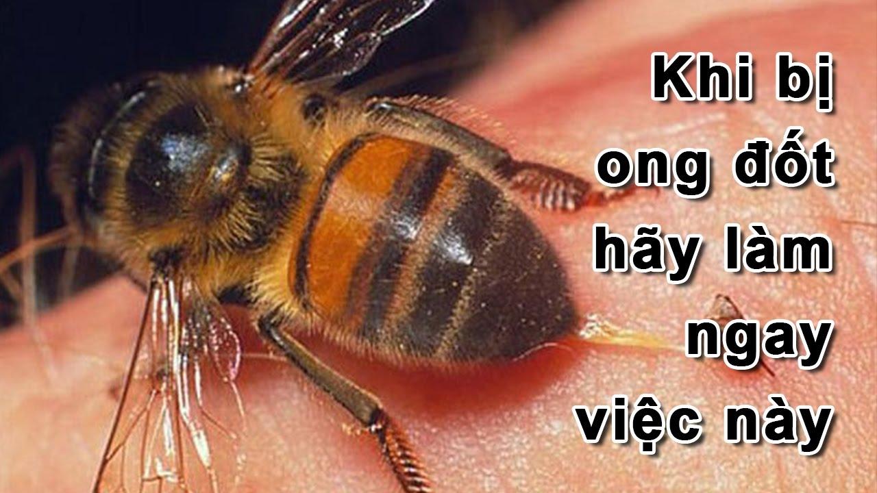 Mẹo xử lý khi bị ong đốt