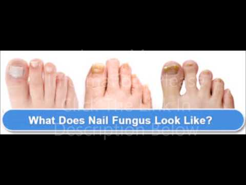 How To Get Rid Of Toenail Fungus Fast At Home