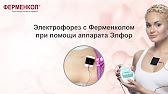 Купить прибор для гальванизации и электрофореза элфор в магазине здоровушка — 2690 рублей. Звоните: +7 (495) 120-14-24.