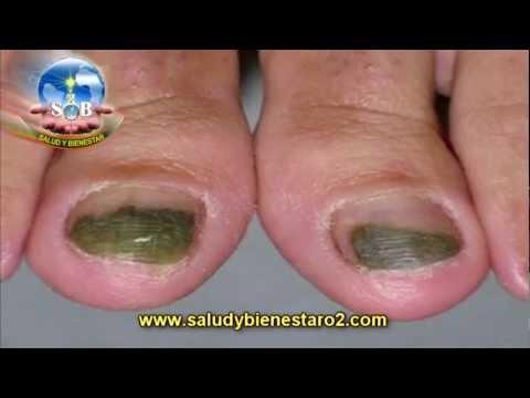 Las medicinas contra el hongo del pie