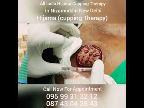 Hijama Cupping Therapy New Delhi OKHLA, Call For Appointment. +91-8743042843