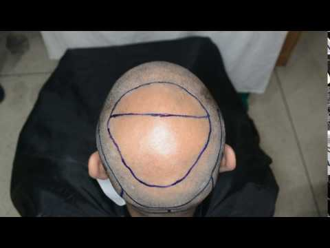 Fue hair transplant Riyadh patient- Crown Area before -Abroad Visit
