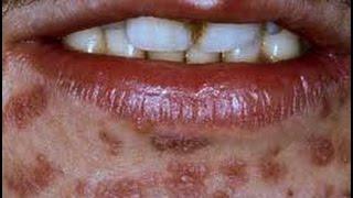 GONORREA O BLENORRAGIA. Causas, sintomas, como se contagia, tratamiento, fotos