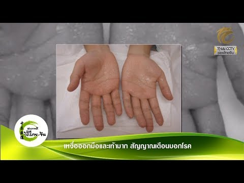 EP.268 - เหงื่อออกมือและเท้ามาก สัญญาณเตือนบอกโรค โดย อ.ภานุภณ ทองประเสริฐ