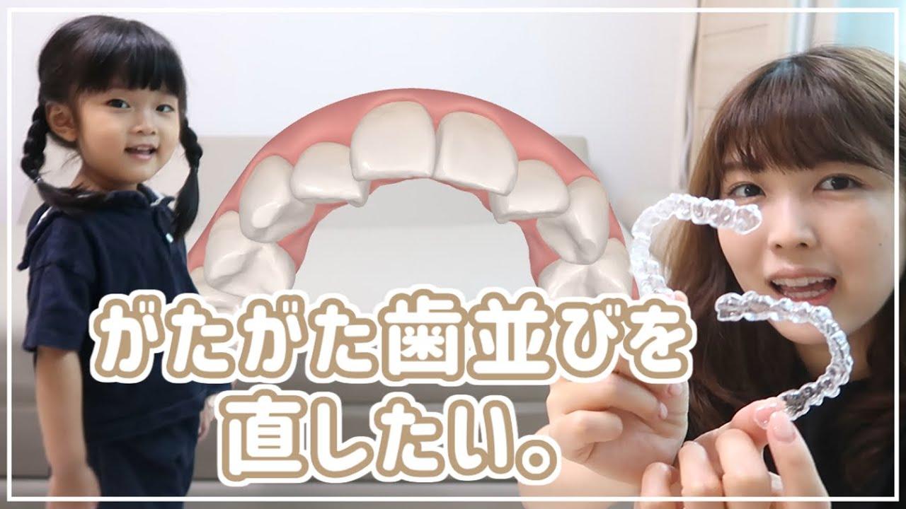 歯列矯正、始めました|マウスピース矯正のメリットデメリット