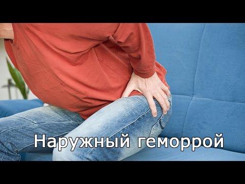 Внутренний геморрой: лечение геморроидальных узлов