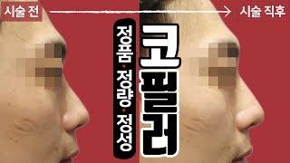남자 얼굴의 완성 코! 코필러 시술 영상 청량리 톡스앤…
