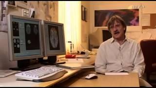 Doku- Gehirn.unter.Drogen.Halluzinogene.und.Ecstasy.-.Angriff.aufs.Bewusstsein Teil 4