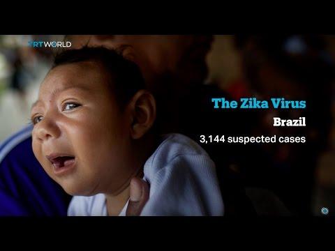 Zika Virus: Brazilian mothers struggle with birth defects