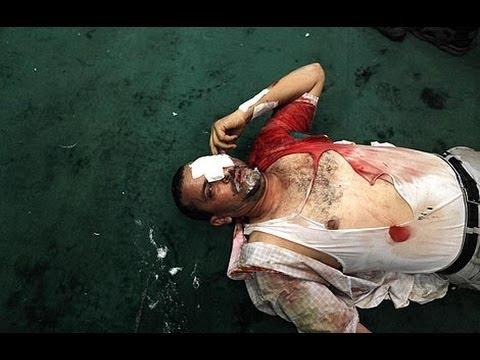 Radio Interview on Bloodbath in Egypt