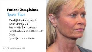 Facelift Surgery, Exploring Patient Objectives During the Consultation Thumbnail