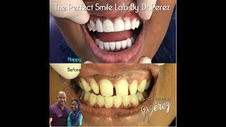 Gambar cover GOT A BAG AND FIXED MY TEETH!(VENEER VLOG PLUS BIANCO SMILE KIT TUTORIAL)