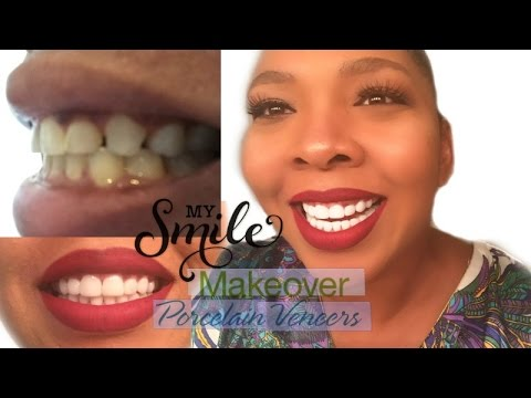 My Teeth Transformation | Porcelain Veneers Experience