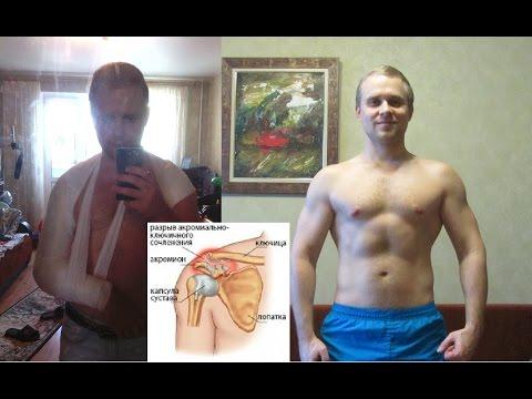 Травма плеча (разрыв связок)-моя реабилитация за 6 месяцев (BBB 36)