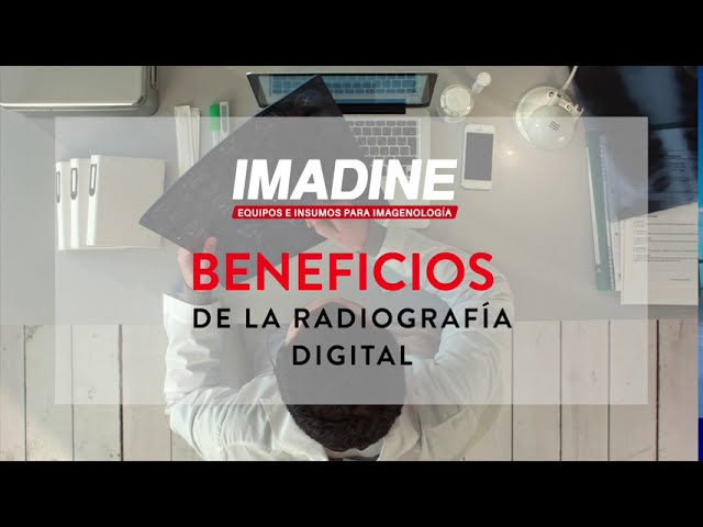Beneficios de la Radiografía Digital