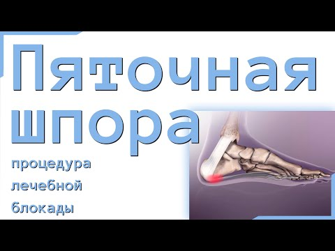 «Дипроспан»: инструкция по применению, уколы при пяточной