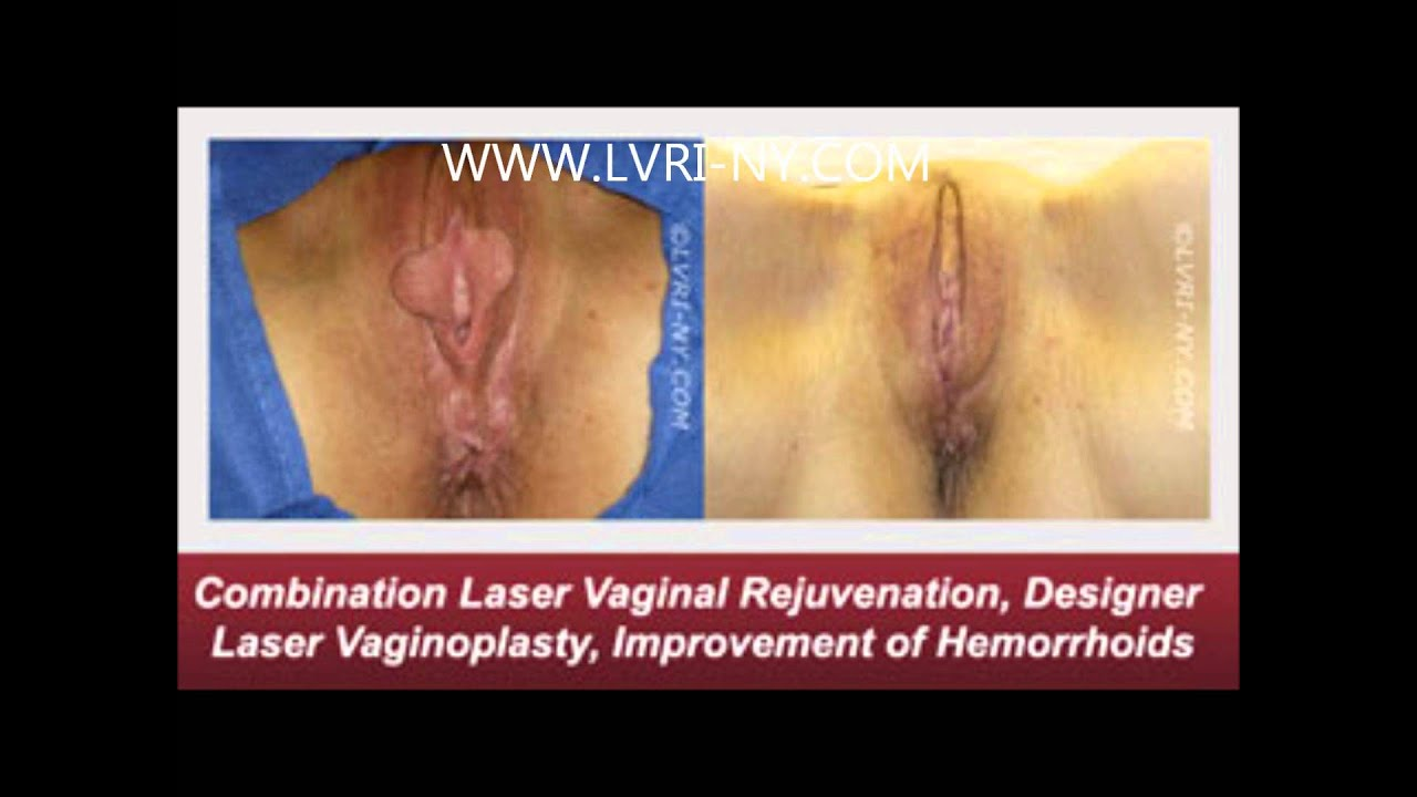 What is labiaplasty