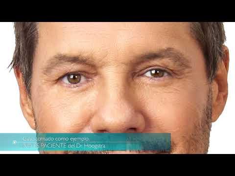 Rejuvenecimiento facial no quirúrgico con láser de CO2 (18075)