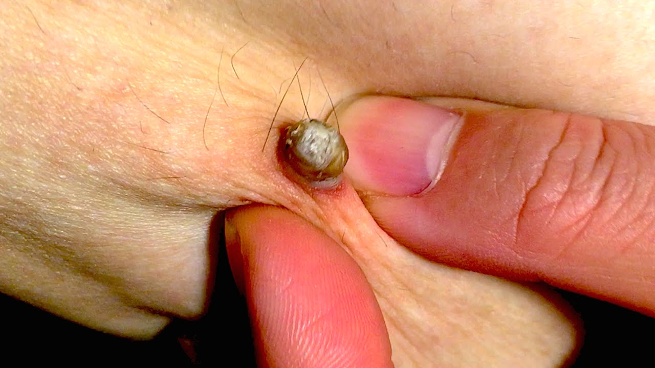 pictures of bumps on the head of the penis