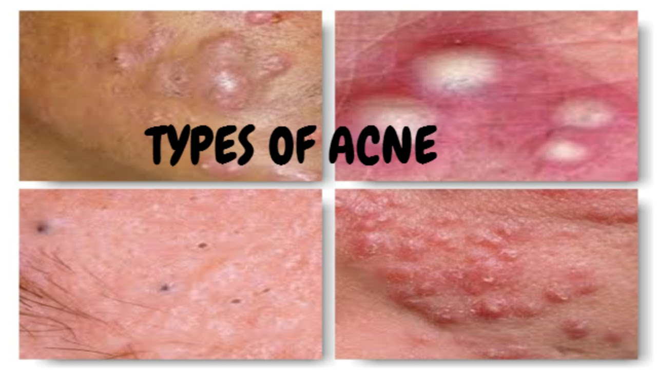 acne talk | types of acne | euniycemari - youtube, Human Body