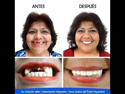 Instituto de Salud Bucal Caso Silvia Ciudad Belleza Dr Carlos Linares Weilg