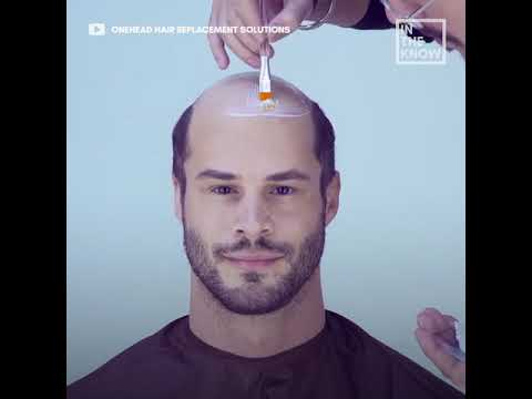 Ultra Realistic Hair Pieces Give Bald Men Hair Again Youtube