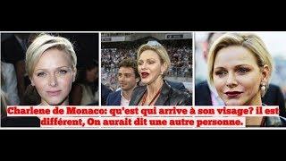 Charlene de Monaco: qu'est-ce qui arrive à son visage? On dirait une autre personne.
