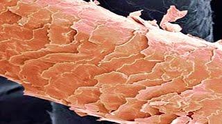 De partes capilares principales los