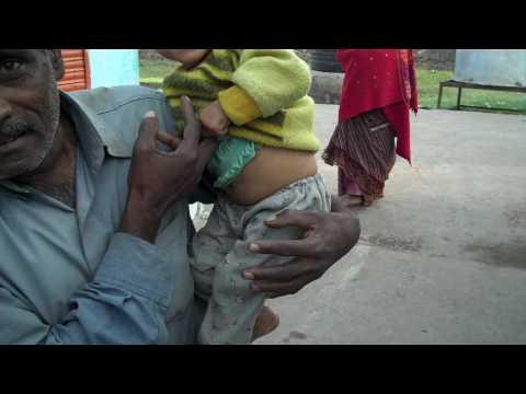 Bhopal Toxic Water Skin Damage.MP4