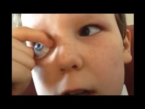 Bu Çocuk Gözlerini Dışarıya Çıkartabiliyor - Garip Şeyler Yapabilen İnanılmaz İnsanlar