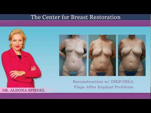 DIEP Flap Before And After Pictures - Houston Breast Reconstruction
